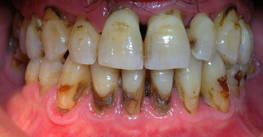 Photo of Как удалить зубной камень за 2 дня — то, что скрывают стоматологи